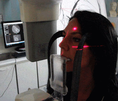 Dental scanning